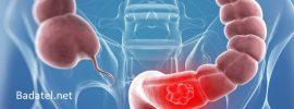 Baktérie vo vašom čreve vám dokážu povedať, či máte riziko, že dostanete kolorektálny karcinóm