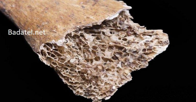Prevencia ochorenia a kostné zdravie: 5 vecí, ktoré potrebujú diabetici vedieť o osteoporóze