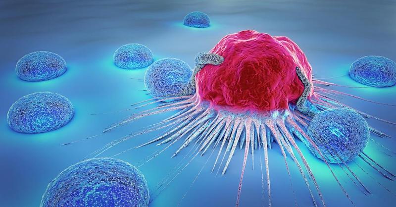 Nová štúdia zistila, ktoré sú najčastejšie príčiny rakoviny