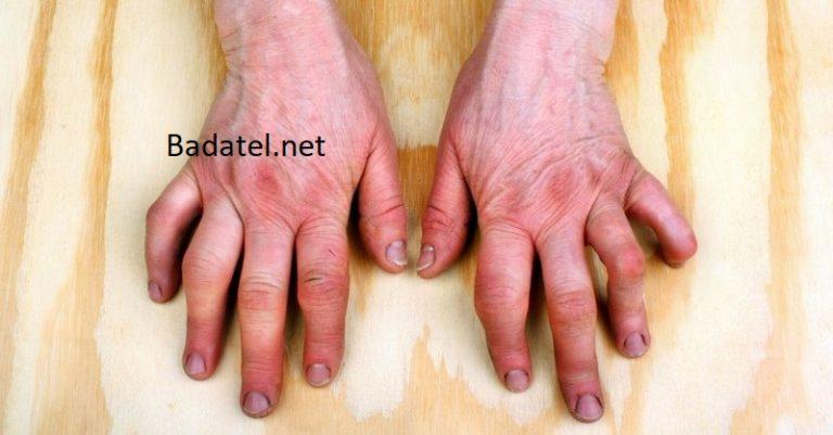 Príčina autoimunitných ochorení ako je reumatoidná artritída by mohla byť vo vašej chladničke