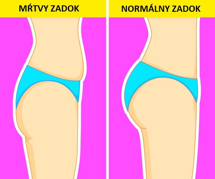 Čo prezrádza tvar vášho zadku o vašom zdraví