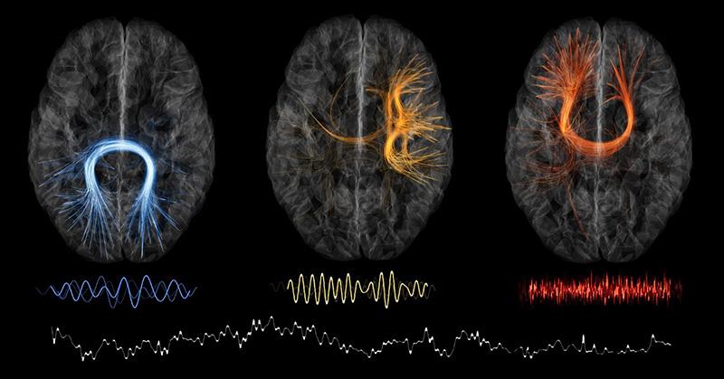 Neurovedci tvrdia, že zábudlivosť môže byť znakom vašej vysokej inteligencie