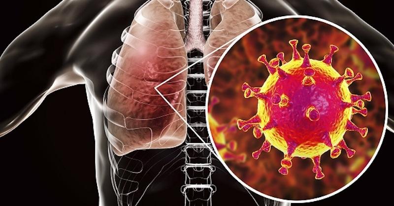 Enzýmy môžu zabrániť poškodeniu ciev atvorbe trombóz pri COVID-19