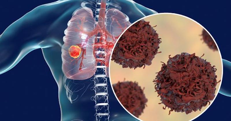 Podľa vedcov môže časté nosenie rúšok prispievať kpokročilej rakovine pľúc