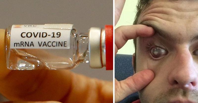 Britská očkovacia správa: Vývinové poruchy plodu, paralýza, mŕtvica čislepota