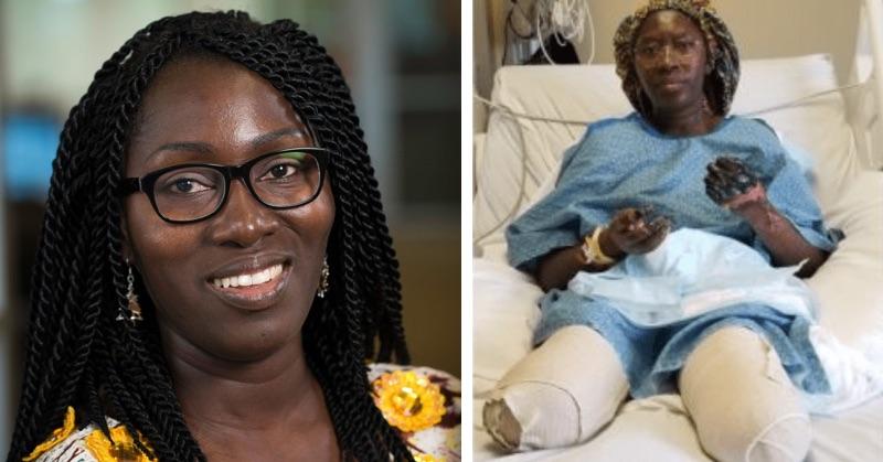 47-ročnej žene zMinnesoty amputovali po vakcíne Pfizer obe ruky aj nohy